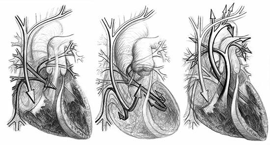 Heart_drawings_3_by_PJK