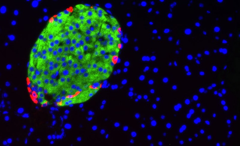 Miniature messenger molecules released by cells in the pancreas (green) may hold the key to early diagnosis of diabetes