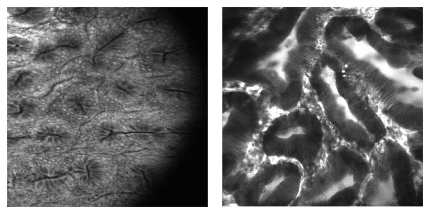 Images of polyps in the colon recorded using a fluorescence endomicroscope.