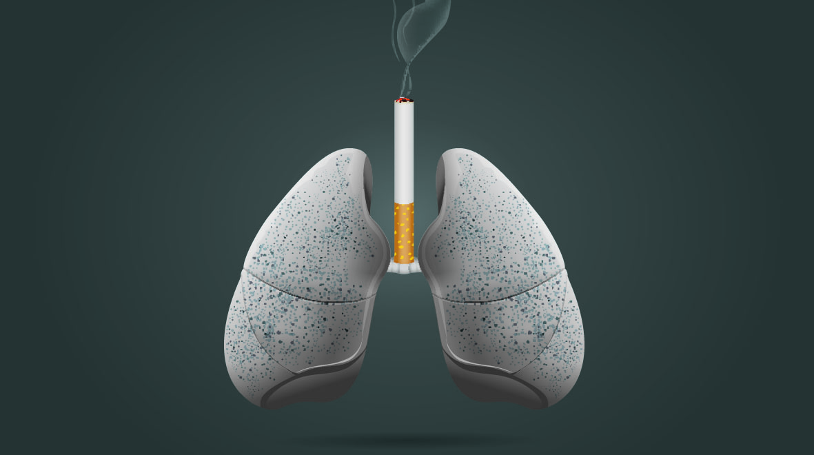 Image: Shutterstock - SMOKE & THE BURNOUT OF MUSCLES