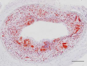 An atherosclerotic plaque full of aggregates of fatty particles, stained in red.