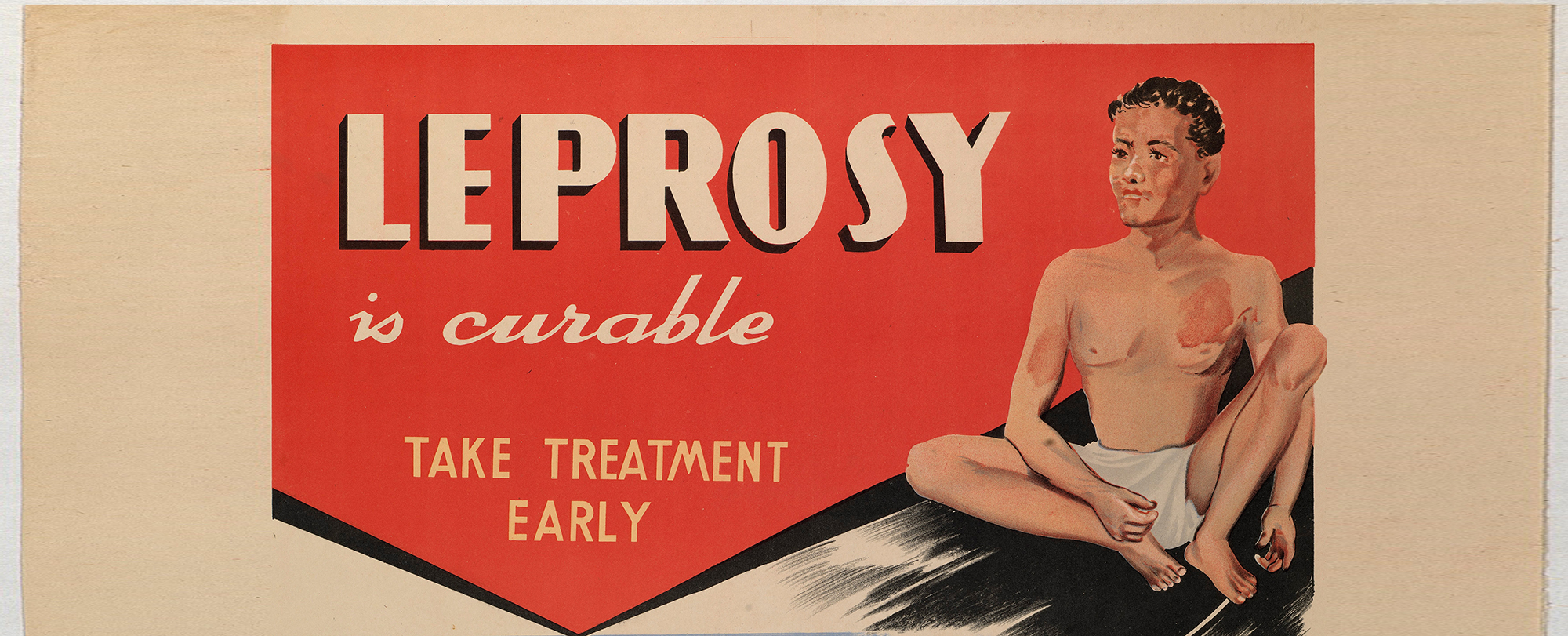 World Leprosy Day. Image courtest of Wellcome Collection.