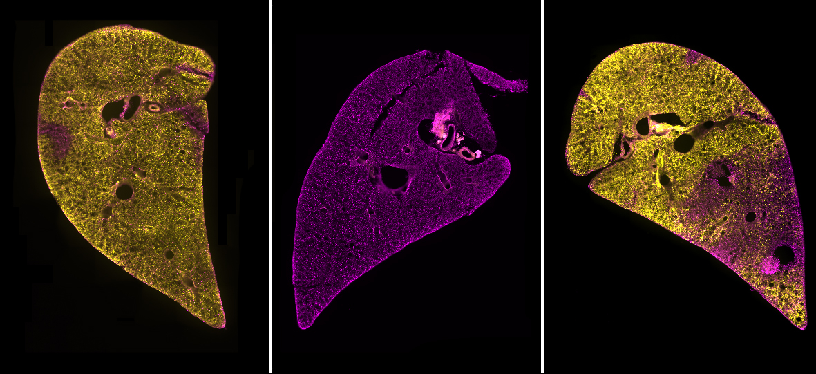 A breath of fresh 'AIR' in the study of lung repair and regeneration